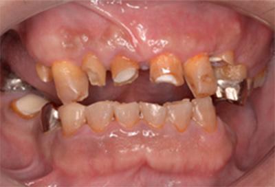 歯肉弁根尖側移動術症例01-治療後