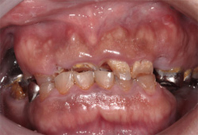 歯肉弁根尖側移動術症例01-治療前