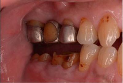 歯肉弁根尖側移動術症例03-治療後