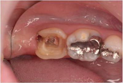 歯肉弁根尖側移動術症例04-治療前
