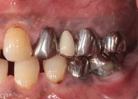 歯肉弁根尖側移動術症例05-治療1