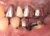 歯肉弁根尖側移動術症例05-治療2