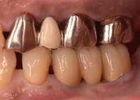 歯肉弁根尖側移動術症例05-治療3