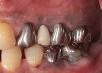 歯肉弁根尖側移動術症例05-治療4