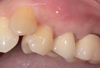 結合組織移植術症例01-治療後