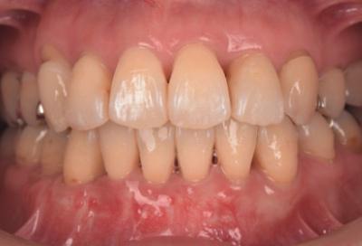 結合組織移植術症例03-治療後