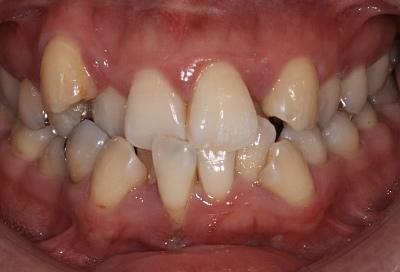結合組織移植術症例03-治療前