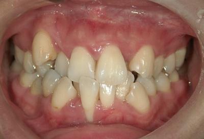結合組織移植術症例03-歯周基本治療の終了時
