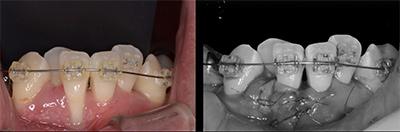 結合組織移植術症例03-歯肉の移植・失われてしまった歯周組織の再生
