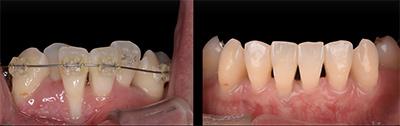 結合組織移植術症例03-歯肉の移植・歯周組織再生療法