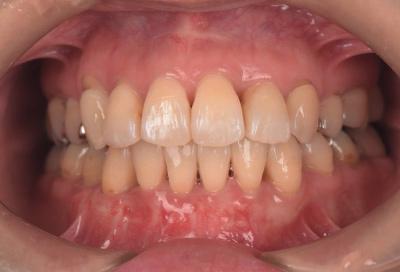 結合組織移植術症例03-治療終了時