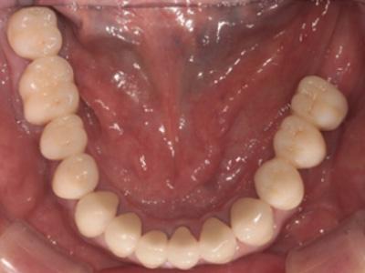 審美治療症例01-下顎-治療後