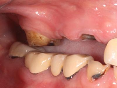 審美治療症例01-左側面-治療前