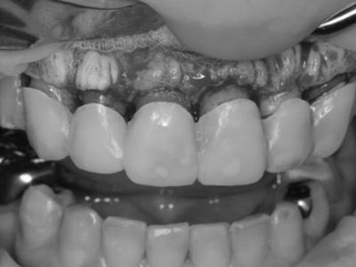 歯周外科処置
