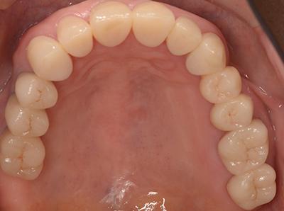 インプラント症例01-上顎-治療後