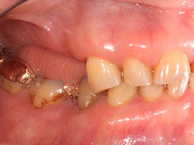 インプラント症例01-左側面-治療前