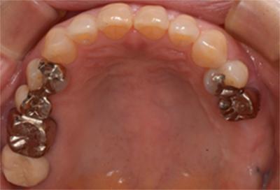 インプラント症例07-治療前