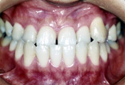 矯正治療・噛み合わせ治療症例01-治療前