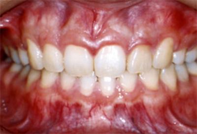 矯正治療・噛み合わせ治療症例02-治療後
