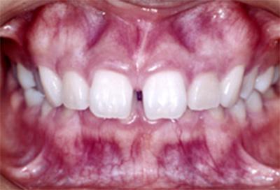 矯正治療・噛み合わせ治療症例02-治療前