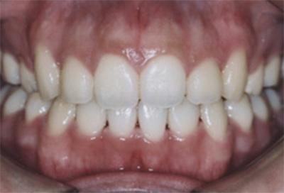 矯正治療・噛み合わせ治療症例03-治療後