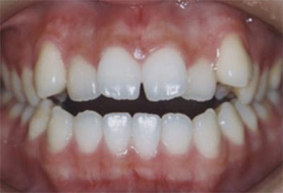 矯正治療・噛み合わせ治療症例03-治療前