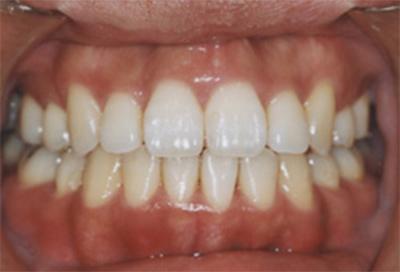 矯正治療・噛み合わせ治療症例04-治療後