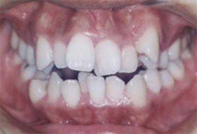 矯正治療・噛み合わせ治療症例04-治療前