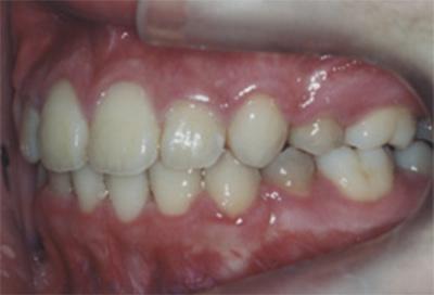矯正治療・噛み合わせ治療症例05-治療後