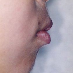 矯正治療・噛み合わせ治療症例05-治療前