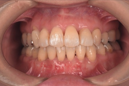 矯正治療・噛み合わせ治療症例06-治療後