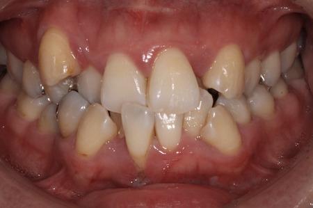矯正治療・噛み合わせ治療症例06-治療前