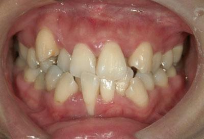 矯正治療・噛み合わせ治療症例06-歯周基本治療の終了時