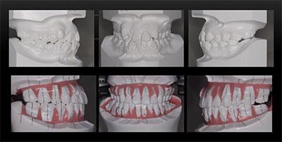 矯正治療・噛み合わせ治療症例06-術前と術後のシミュレーション