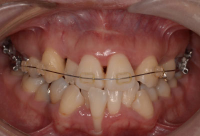 矯正治療・噛み合わせ治療症例06-矯正治療開始から半年後