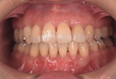 矯正治療・噛み合わせ治療症例06-治療終了時