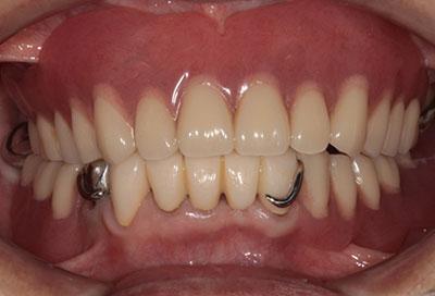歯周病治療症例01-治療後