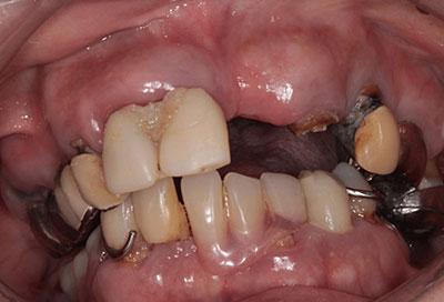 歯周病治療症例02-治療前