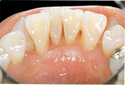 歯周病治療症例03-治療後