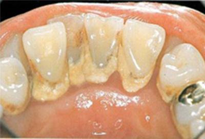 歯周病治療症例03-治療前