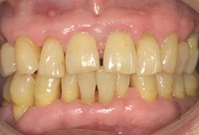 歯周病治療症例04-治療後