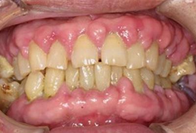 歯周病治療症例04-治療前