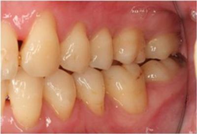歯周病治療症例05-治療後