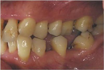 歯周病治療症例05-治療前