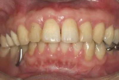 歯周病治療症例06-治療後