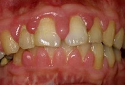 歯周病治療症例06-治療前