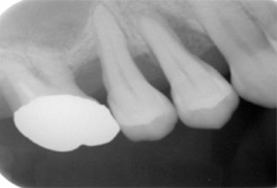 歯周組織再生療法症例02-治療前