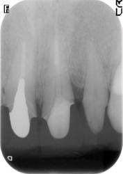 歯周組織再生療法症例03-治療後