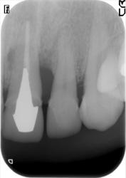 歯周組織再生療法症例03-治療前