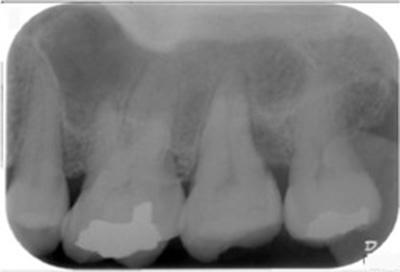 歯周組織再生療法症例04-治療前